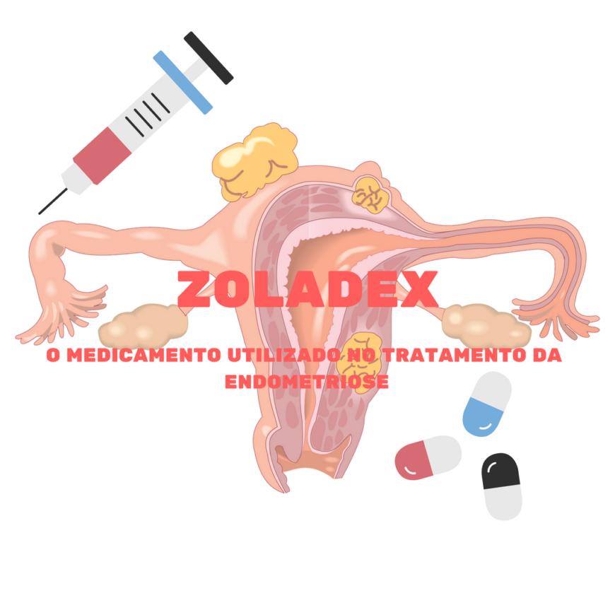 ZOLADEX: medicamento para tratamento da endometriose